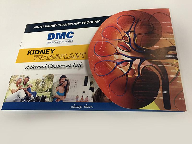Grigg - DMC Harper University Hospital Kidney Transplant